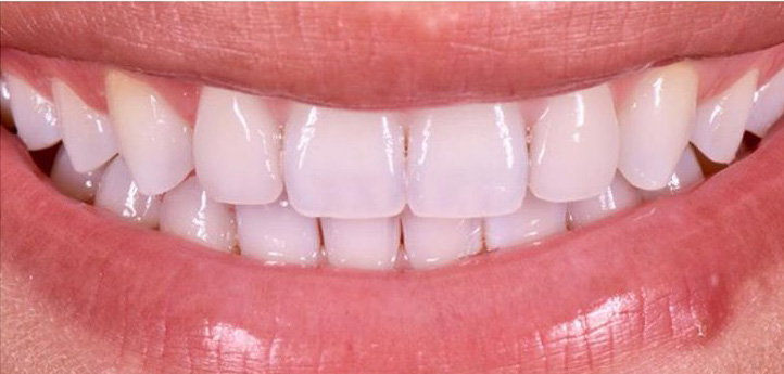 After image of straight, white teeth