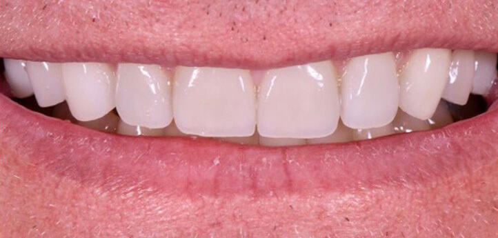 Straight, white teeth in an after photo