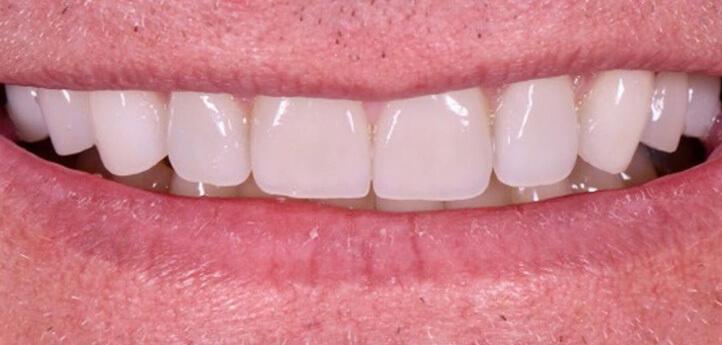 Best Dentist in Birmingham