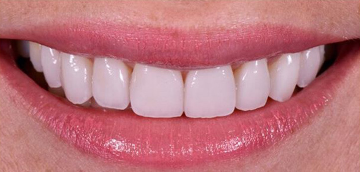 White, straight teeth in a woman's after photo