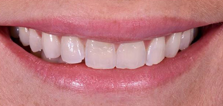 Before photo of stained teeth