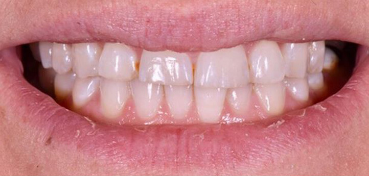Discolored and crooked teeth in a before photo