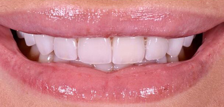 Beautiful smile after teeth whitening and orthodontics