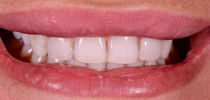 Before image of stained teeth before a dental procedure
