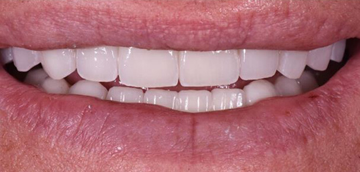 Whitened and straight teeth shown after a dental procedure